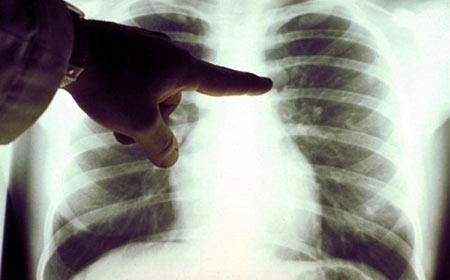 sicilia-cancro-polmoni-terza-causa-di-morte-per -gli-uomini-fumatori-marsala-news-cronaca-marsalanews-Cancer